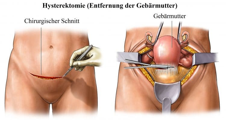 Hysterektomie, Entfernung der Gebärmutter