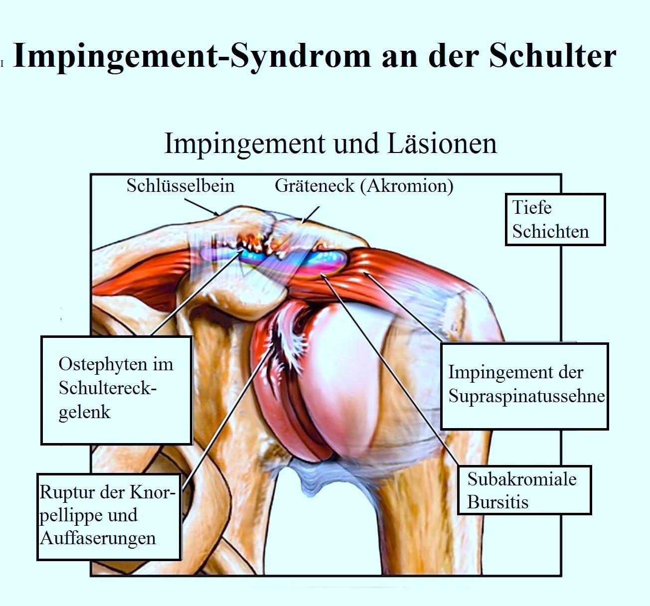 Kalkschulter, Schmerzen, Symptome, Schulterschmerzen, Behandlung