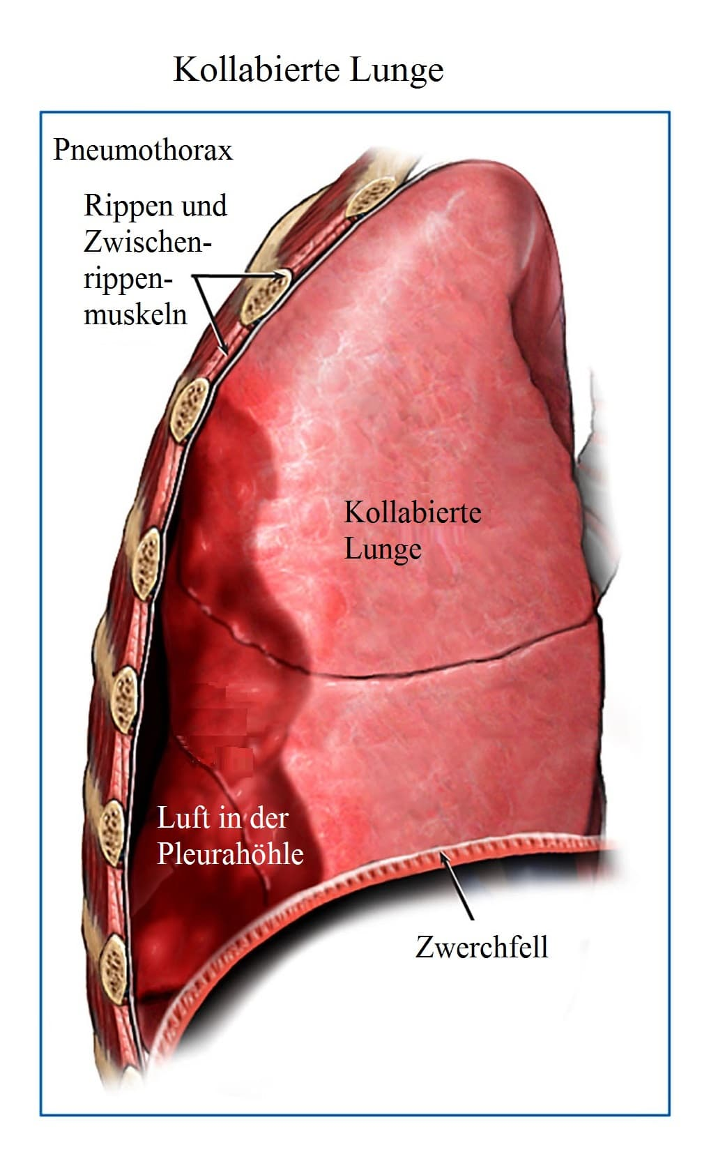 Kollabierte, Lunge, Luft, Pleurahöhle