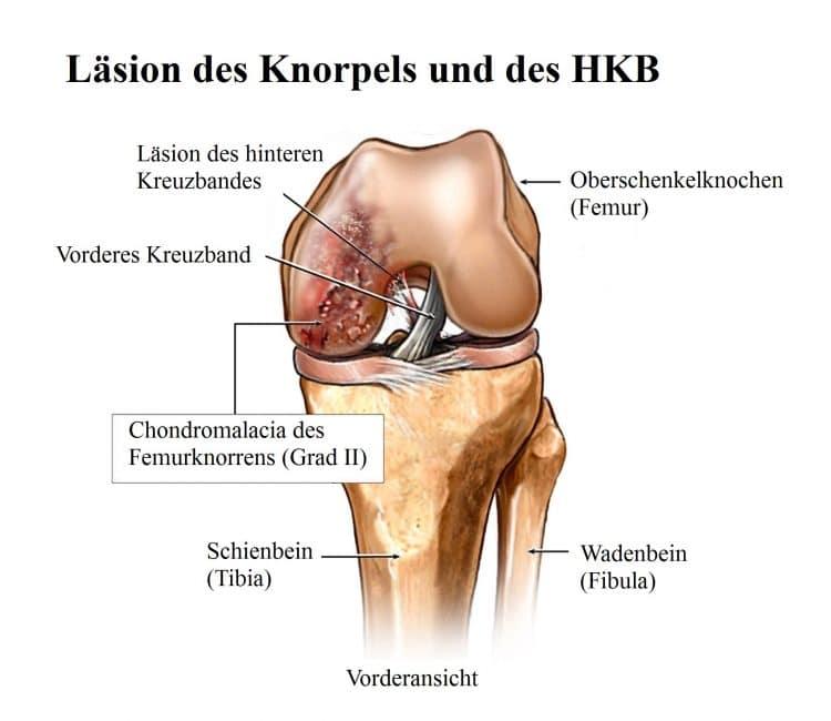 Schmerzen oberhalb der Kniescheibe