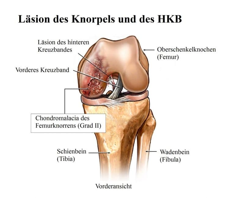 Läsion, Knorpel, HKB, Chondroplastik