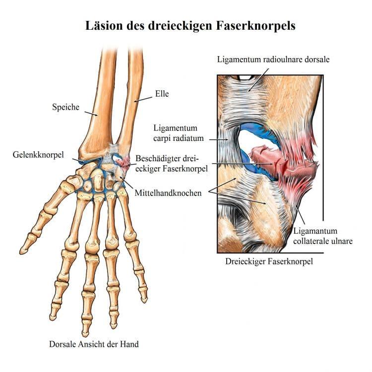 Nett Sehnen Der Hand Und Des Handgelenks Anatomie Zeitgenössisch ...