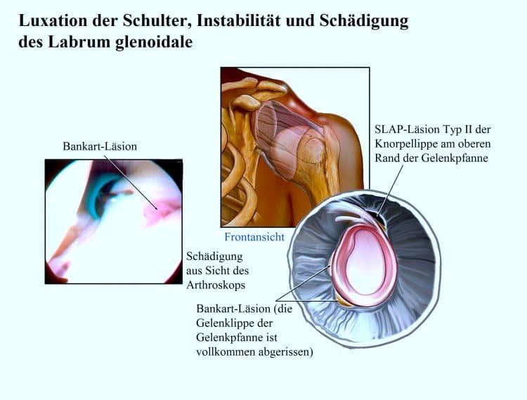 Luxation, Schulter, Instabilität, Schädigung des Labrum glenoidale