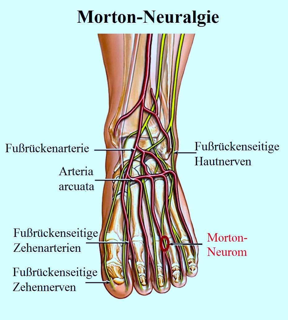 Morton, Neuralgie, Fuß, Nerv