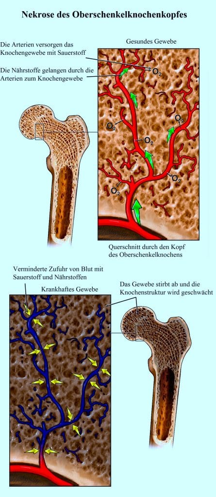 Nekrose des Oberschenkelknochenkopfes