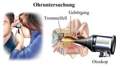 Ohruntersuchung, Trommelfell, Gehörgang, Otoskop