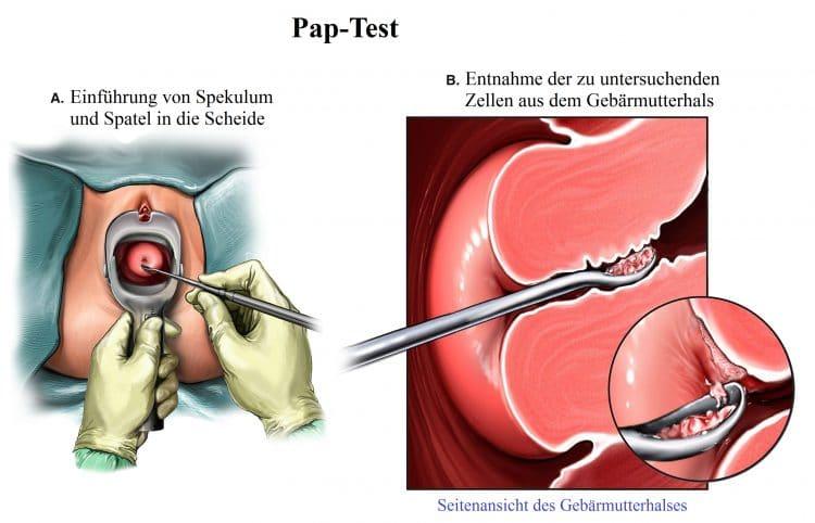 Pap-Test, Spekulum, Gebärmutterhal
