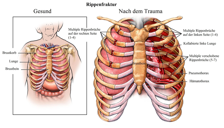Rippenfraktur-multiple, Pneumothorax, Hämatothorax