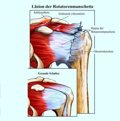 Nervenentzündung im schultergelenk, bei verletzung der...