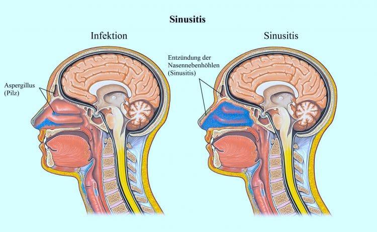 Sinusitis, Infektion, Hirnblutung, Nasennebenhöhlen