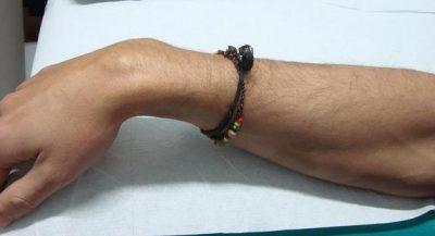 Ganglion am Handgelenk, Cyst, Operation, Behandlung