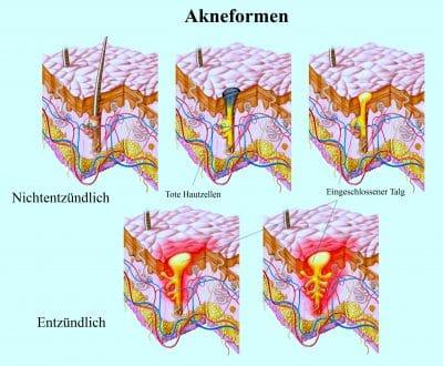 Akneformen-Entzündlich, Hautzellen, Talg