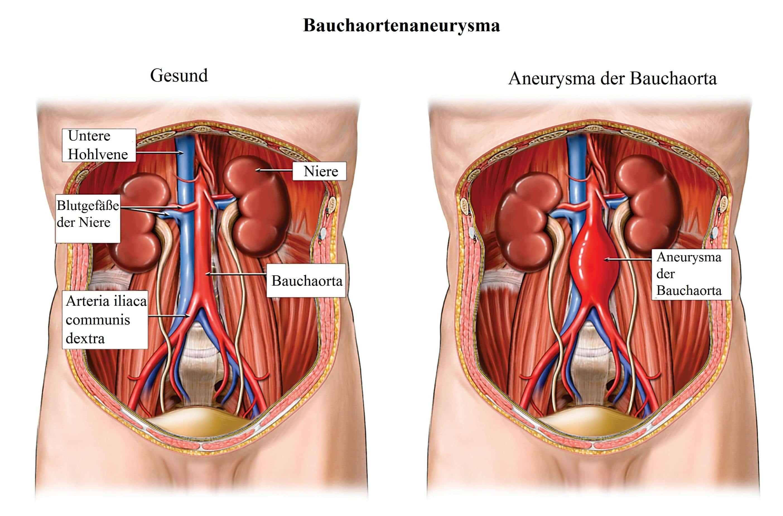 Ungewöhnlich Untere Hohlvene Anatomie Bilder - Anatomie Von ...