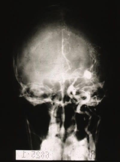 anzeichen aneurysma gehirn