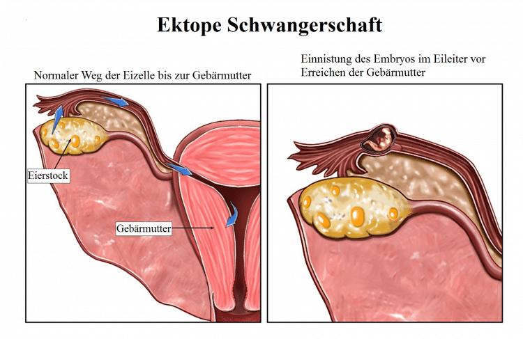 Ektope, Schwangerschaft, Eizelle, Gebärmutter