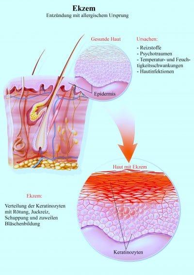 Ekzem-Entzündung, Juckreiz, Rötung