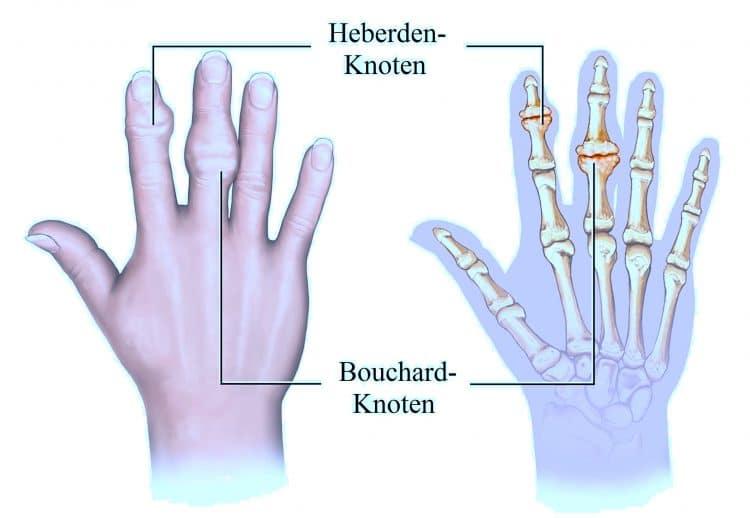 Heberden, Knoten, Bouchard