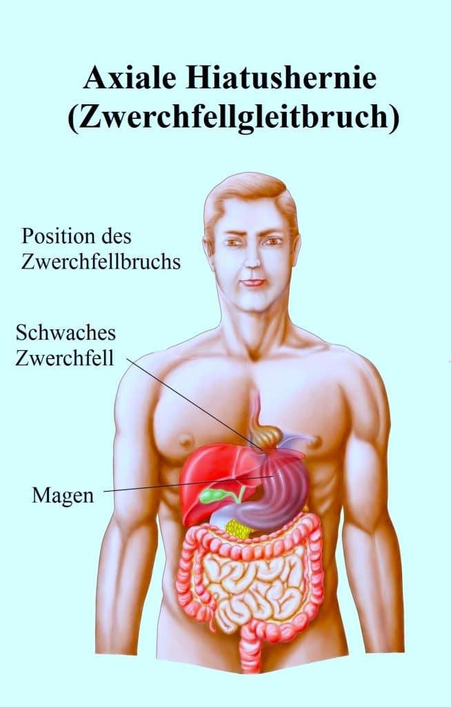 Hiatushernie-Zwerchfellgleitbruch-Speiseröhre-Magen