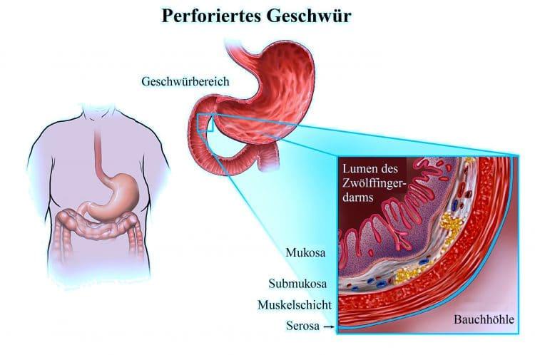 verursacht helicobacter durchfall