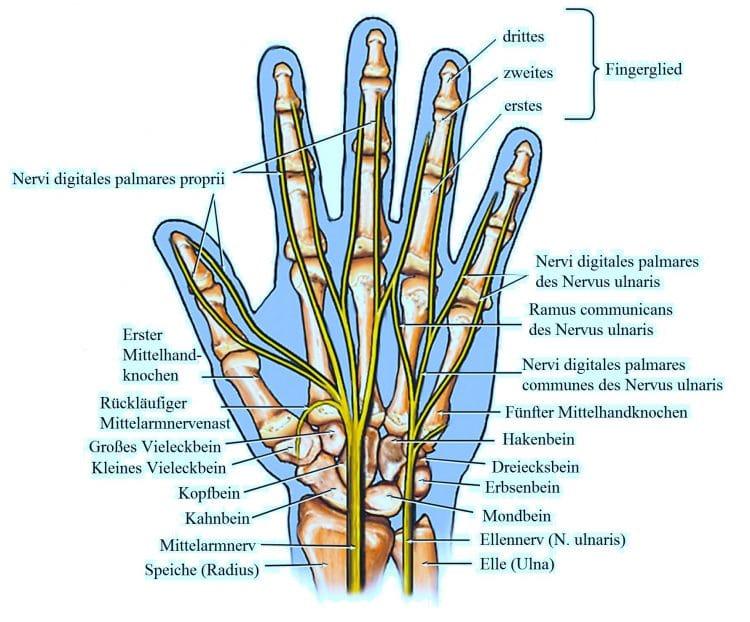 Taube Finger, taube Hände, Karpaltunnelsyndrom, rechte