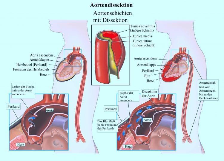 Aortendissektion, Aorta, Perikard, Tunica