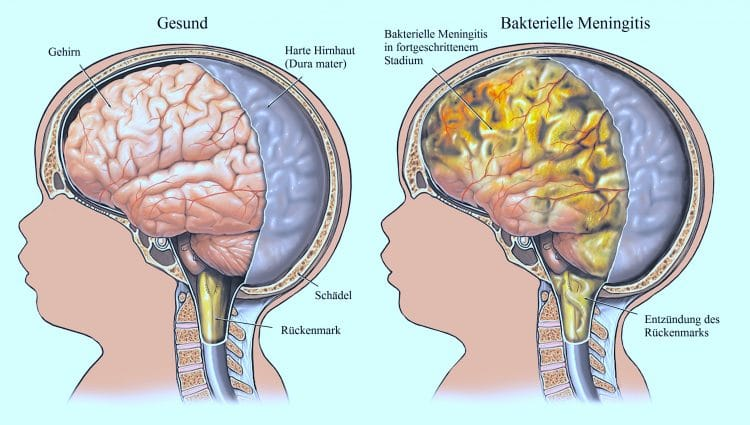 Bakterielle, Meningitis, Hirn, Schäde