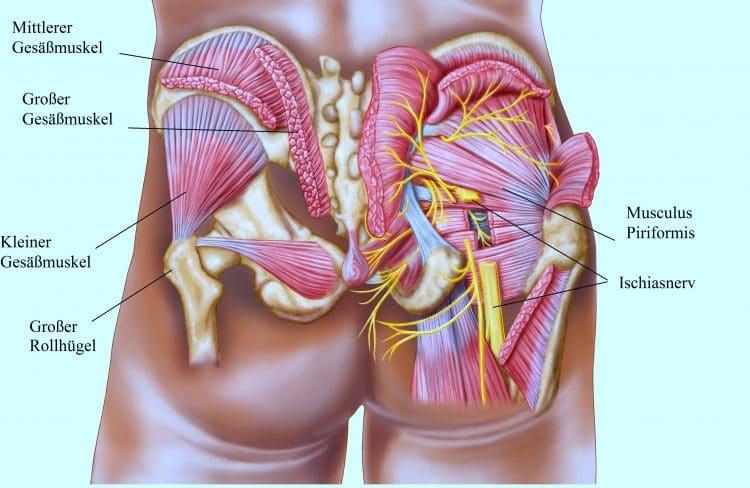 Gesäßmuskel, Piriformis, Ischiasnerv