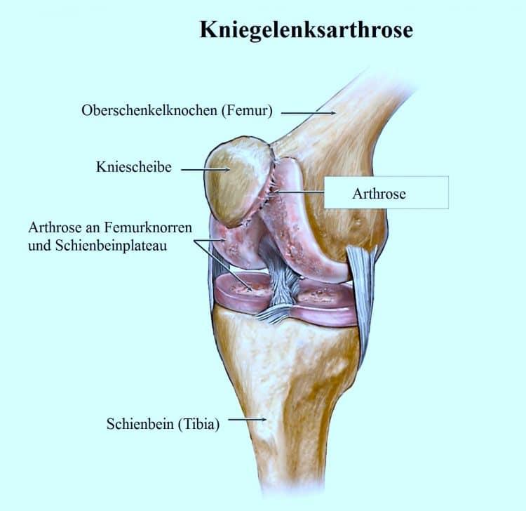 Kniegelenksarthrose, Eingriff, Knieprothese
