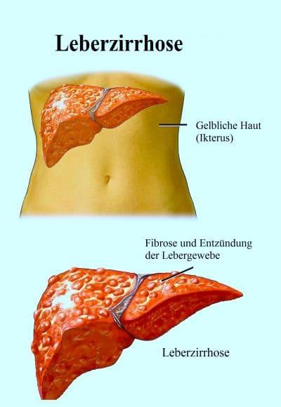 Leberzirrhose, Fibrose, Ikterus, gelb