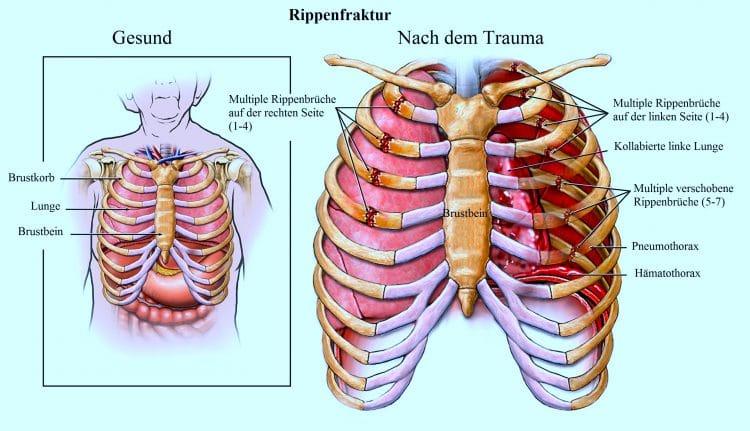 Rippenfraktur, multiple, Pneumothorax, Hämatothorax