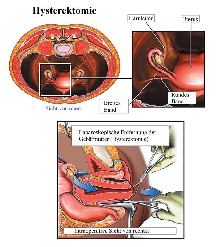 Hysterektomie-laparoskopisch-rundes-Gebärmutterband