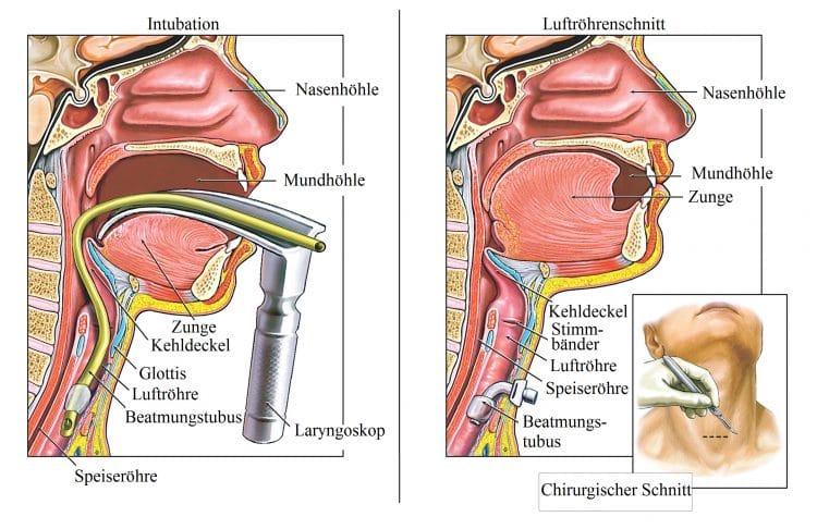 Intubation-Luftröhrenschnitt-Tubus-Luftröhre