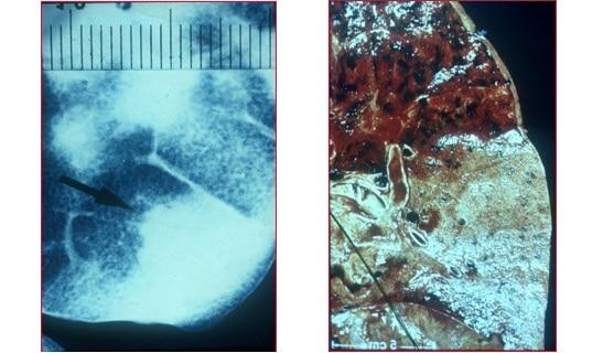Lungenstruktur