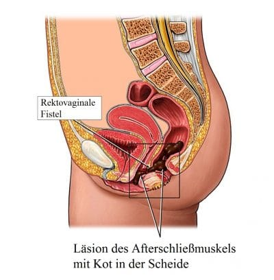 Operation-rektovaginale-Fistel-Sphinkteroplastik
