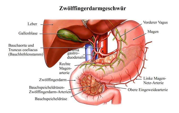 Zwölffingerdarmgeschwür-Magen-Dünndarm-Vagus