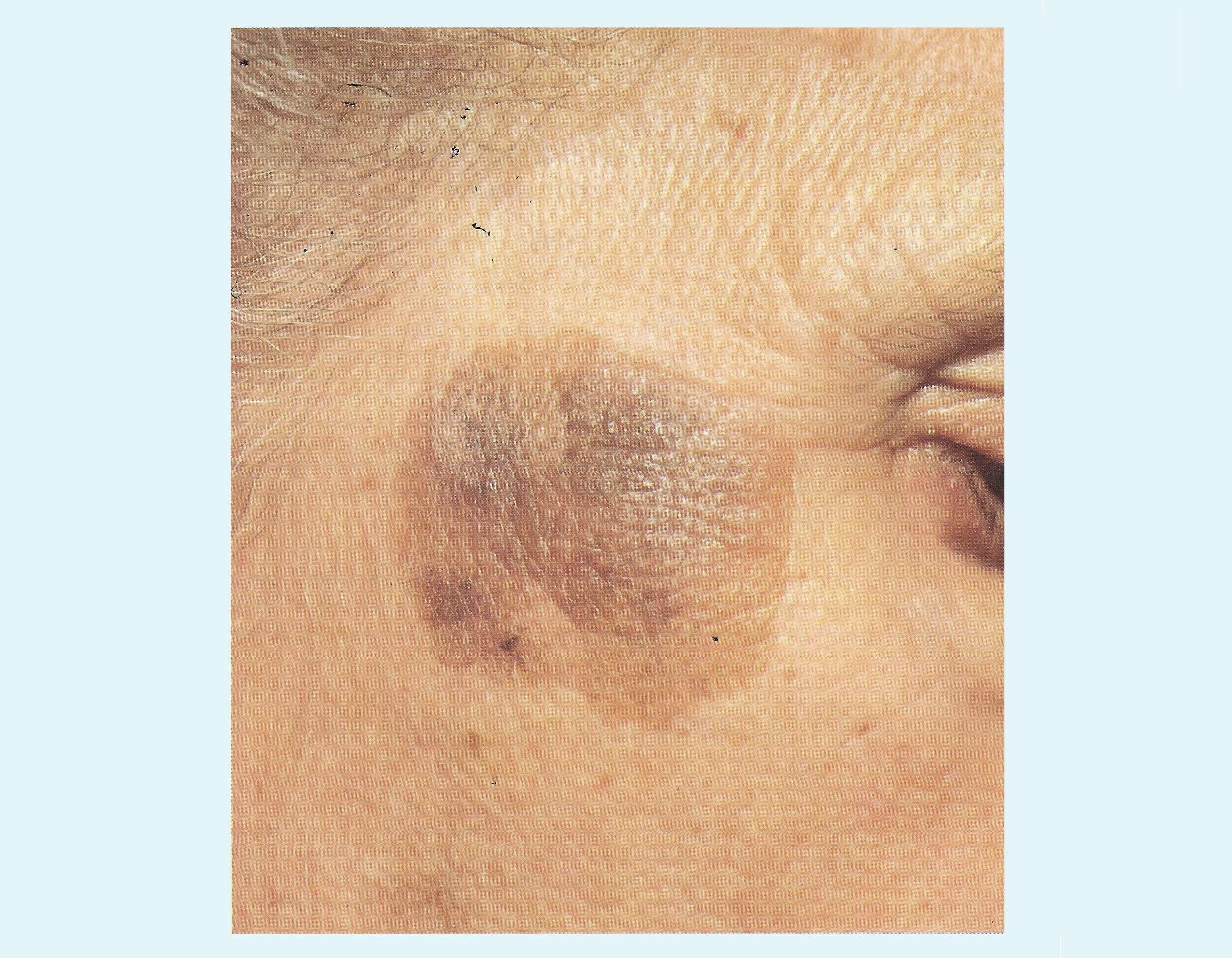 Aktinische Und Seborrhoische Keratose Hautkrebs Bilder Haut Salbe