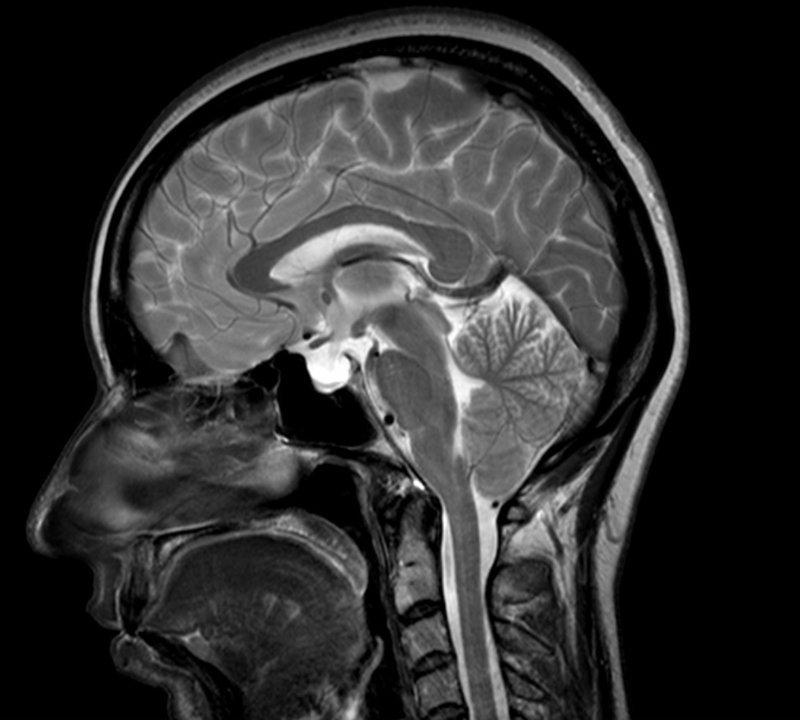 Arnold-Chiari-Syndrom