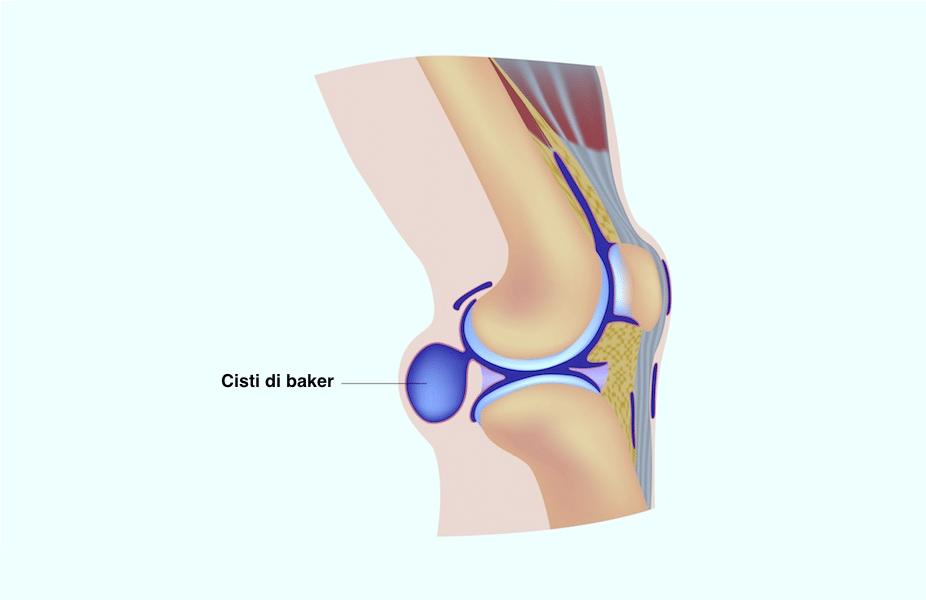 Schmerzen in der Kniekehle