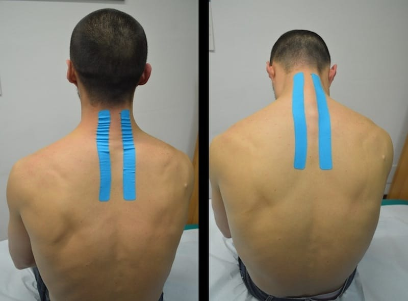 Behandlung von Nackenschmerzen