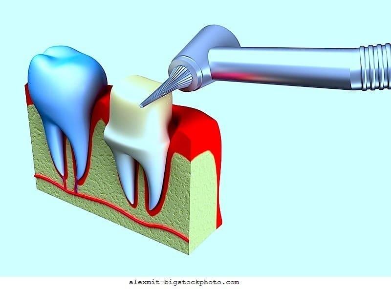 Devitaler Zahn und Wurzelkanalbehandlung