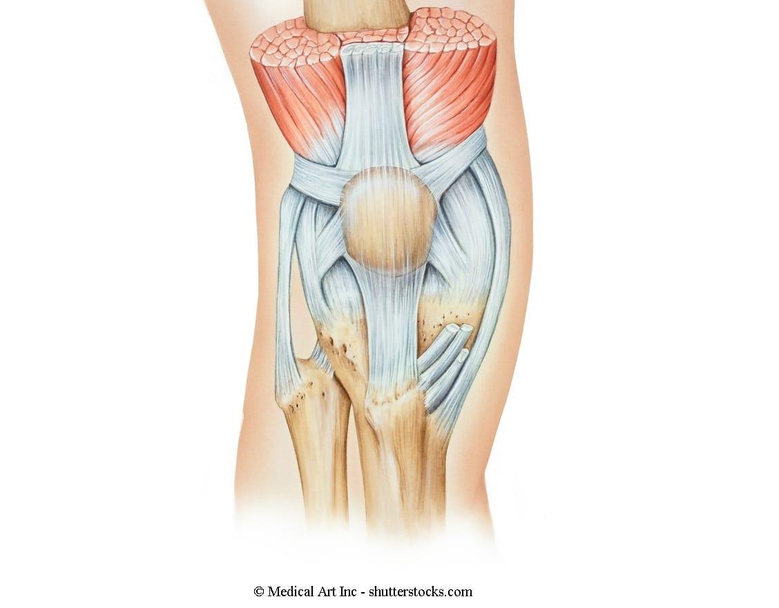 Therapie bei Entzündung der Patellasehne