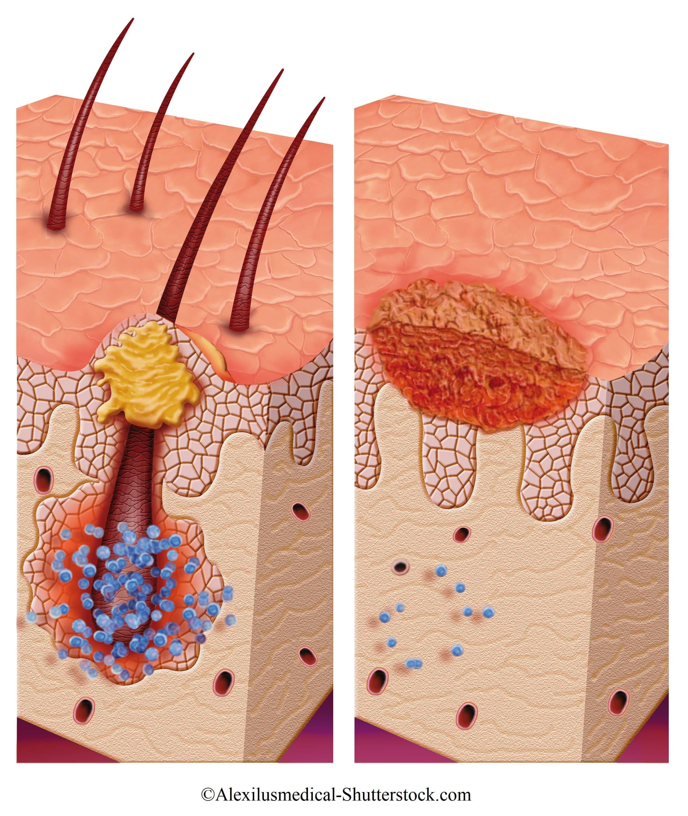 Follikulitis Therapie und Naturheilmittel