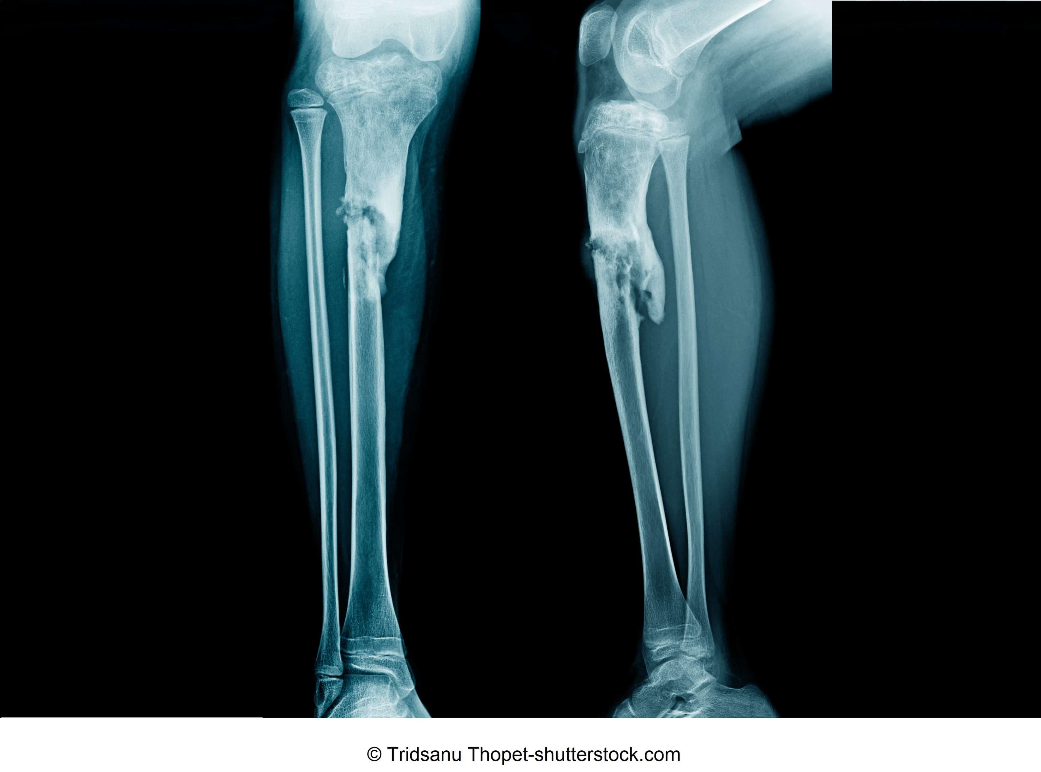 Knochenbruch und Behandlung