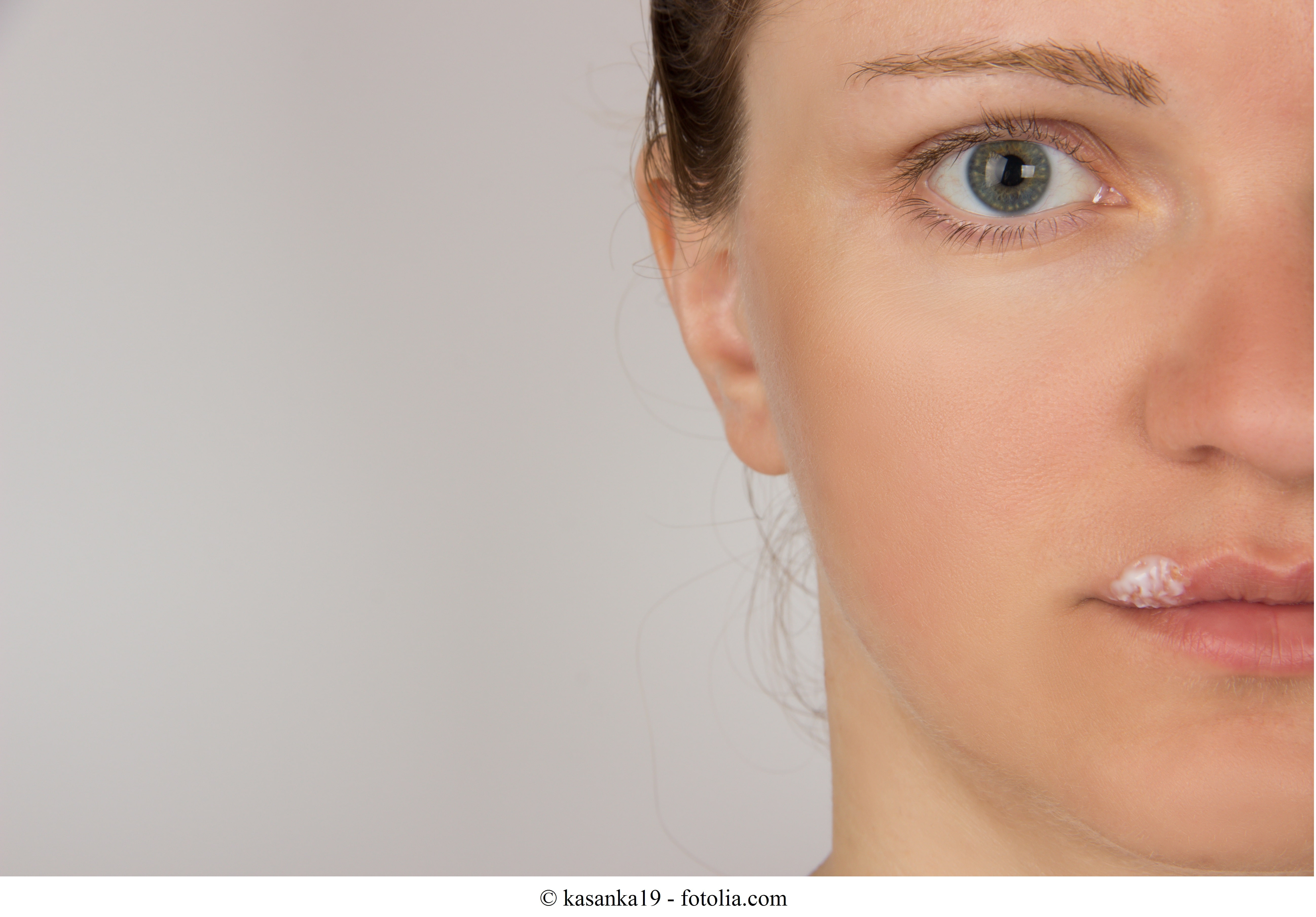 Lippenherpes oder Herpes labialis