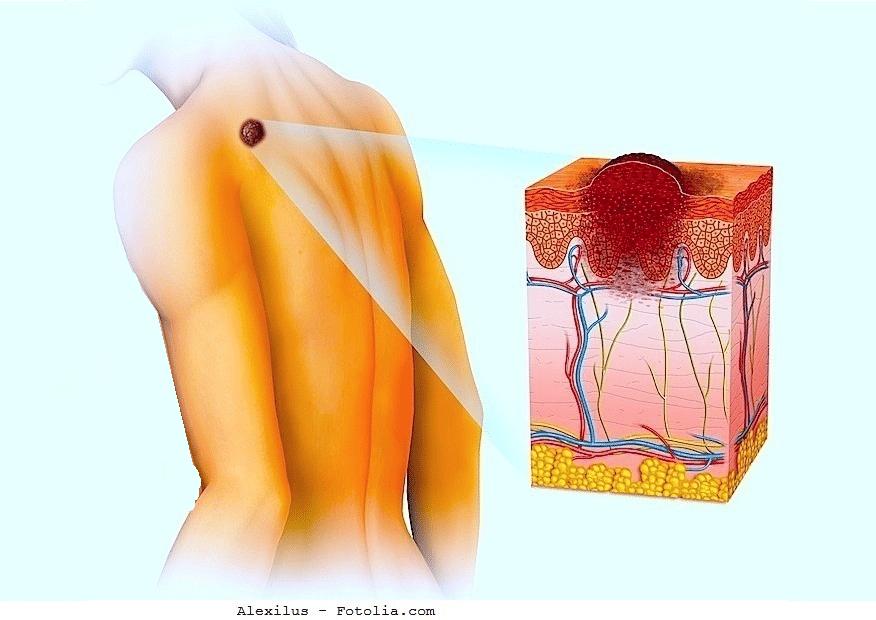 Malignes-Melanom-und-Metastasen