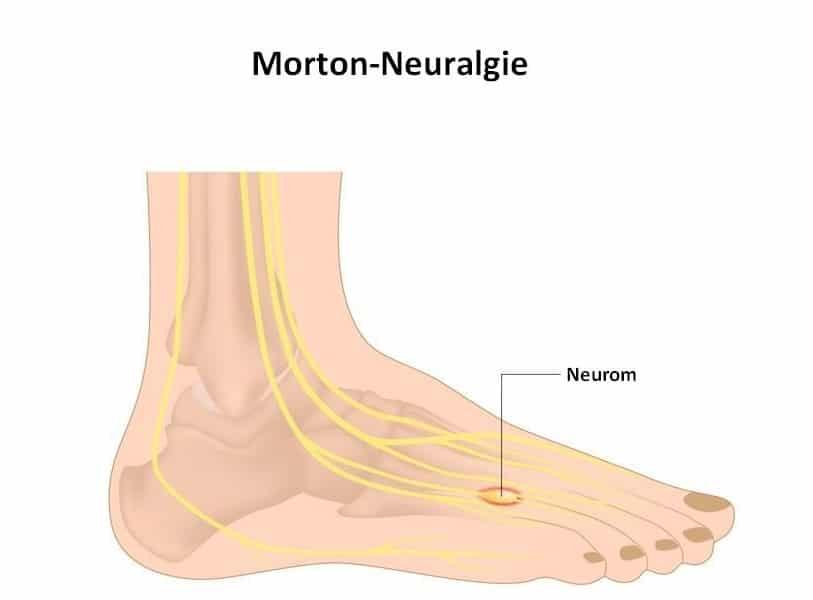 Metatarsalgie und Morton-Neurom