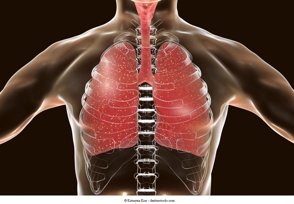 Pleuramesotheliom, Pleuraerguss, Symptome, Therapie, Metastasen