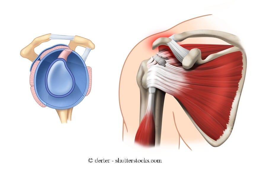 Rehabilitation bei einer Schulterfraktur