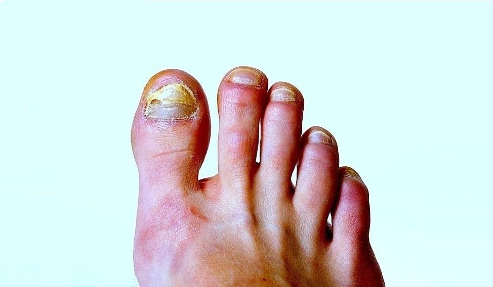 Diagnostik und Therapie von Nagelerkrankungen