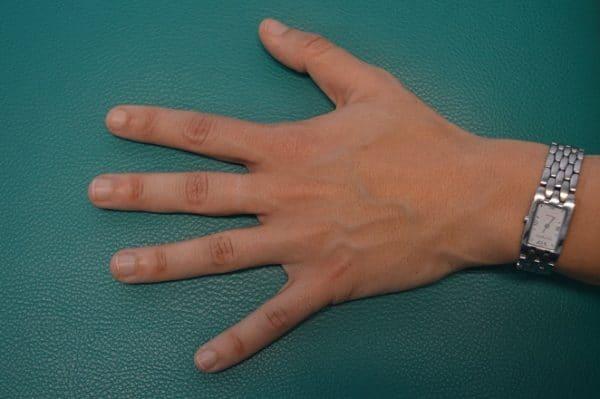 Schnellender Finger, Operation, Daumen, Schmerzen, Schiene